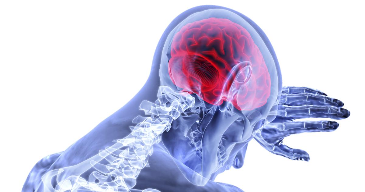 Emicrania con e senza aura, sintomi e cure